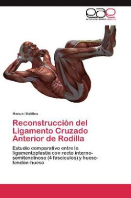 Reconstrucción del Ligamento Cruzado Anterior de Rodilla